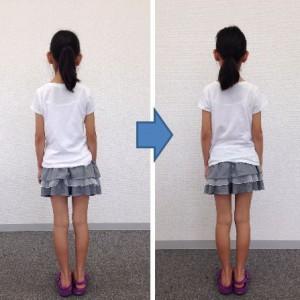 子どもの姿勢教室レッスン前とレッスン後の写真